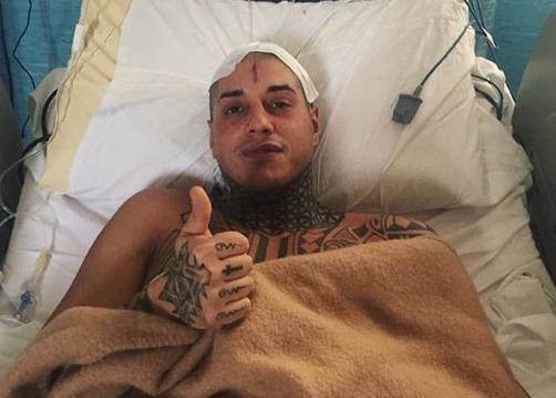 Francesco Chiofalo, le prime parole dopo l'intervento: «Non muovo le gambe e ho perso 10 chili»