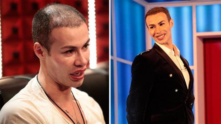 Grande Fratello, il Ken umano senza capelli: l'incredibile trasformazione di Angelo Sanzio