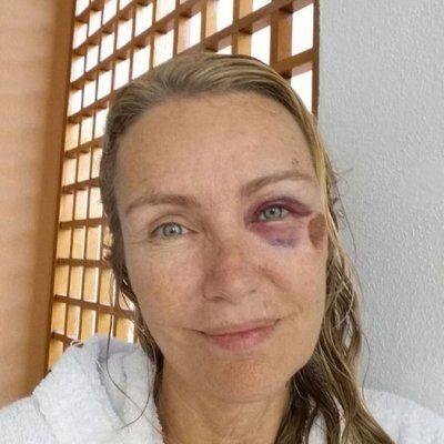 Licia Colò occhio nero dopo la caduta dallo skarebord