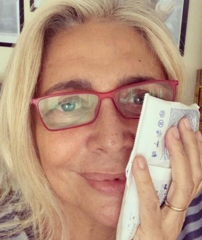 Mara Venier posta una foto dopo un'operazione alla bocca
