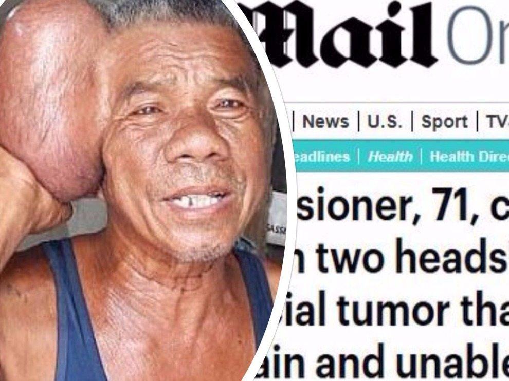 Ha un cancro al cuoio capelluto grande quanto la sua testa, i medici asportano una massa di 2 chili