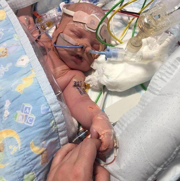 Nasce con metà cuore, dopo un mese di vita arriva il primo battito