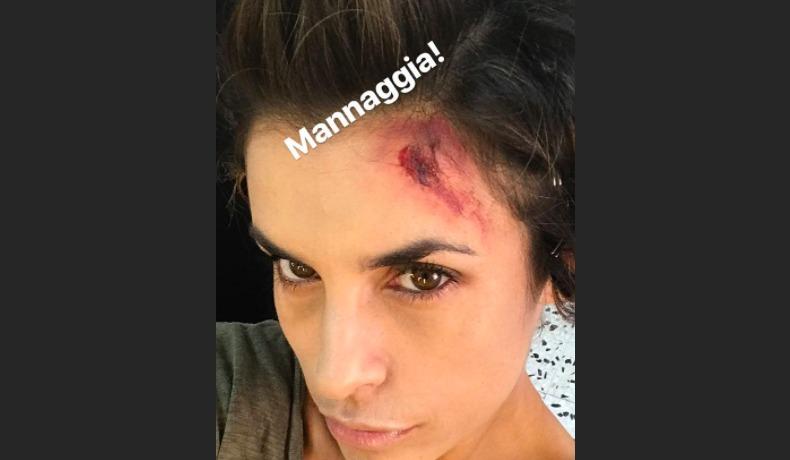 Elisabetta Canalis ferita alla testa, fan spaventati su Instagram: cosa sta succedendo