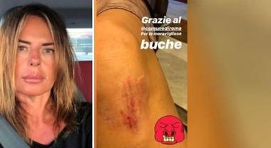 Paola Perego cade in una buca e si sfoga su Instagram: «Grazie Roma»