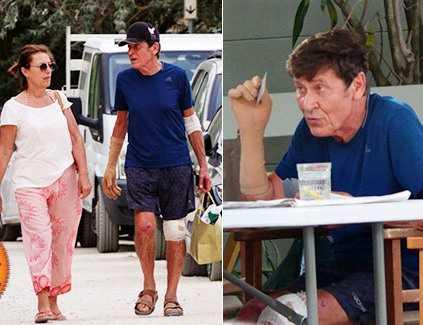 Gianni Morandi torna al mare con la moglie dopo l'incidente