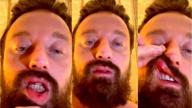 Francesco Facchinetti choc Conor McGregor mi ha picchiato è violento e pericoloso