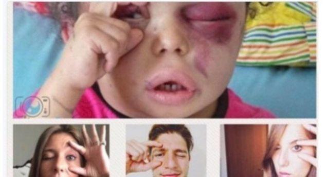 """""""Occhi aperti"""" sullo Yemen, il gesto di una bimba - scampata ad un bombardamento, che cerca di aprire l'occhio tumefatto per vedere - diventa il simbolo del conflitto"""