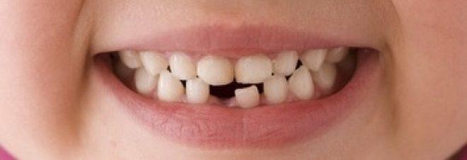 Dentino rotto a scuola, i genitori ottengono dal Comune 5200 euro