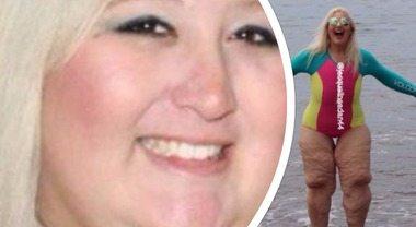 Dimagrisce e perde 100 kg, a chi la deride risponde così: il post è virale