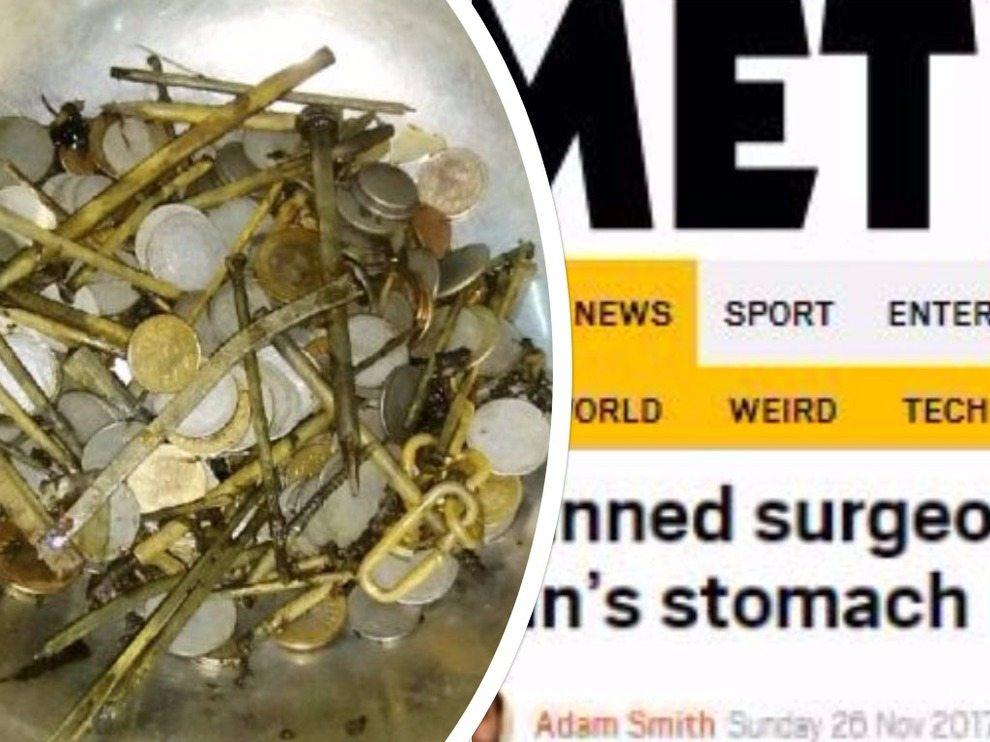 Ha dolori addominali, gli trovano 7 kg di metallo (263 monete e 100 chiodi) nello stomaco
