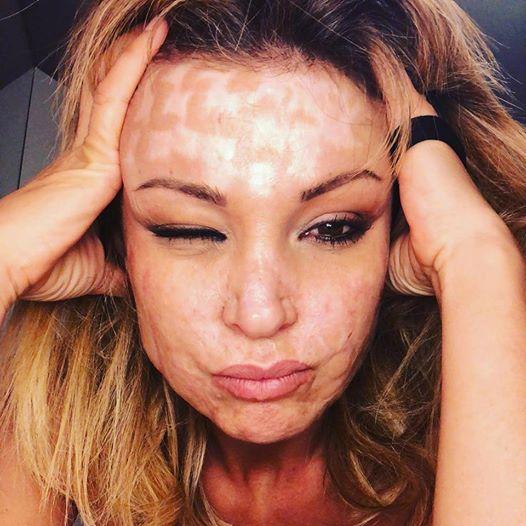 Cristina Guidetti, la modella sfregiata dal chirurgo estetico: «Ho fatto 42 interventi, non mi riconosco più»