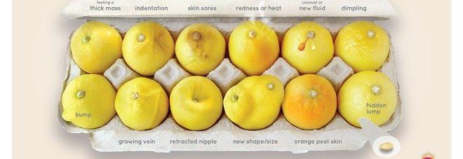 Tumore al seno? I 12 limoni che ti fanno capire se sei malata