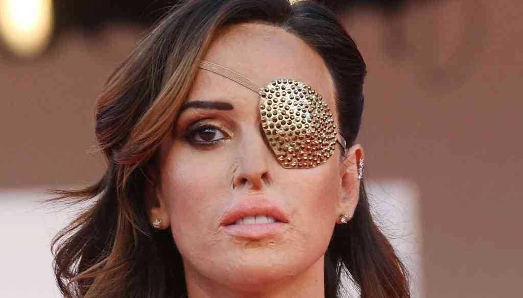 Gessica Notaro torna in sala operatoria un nuovo intervento al viso
