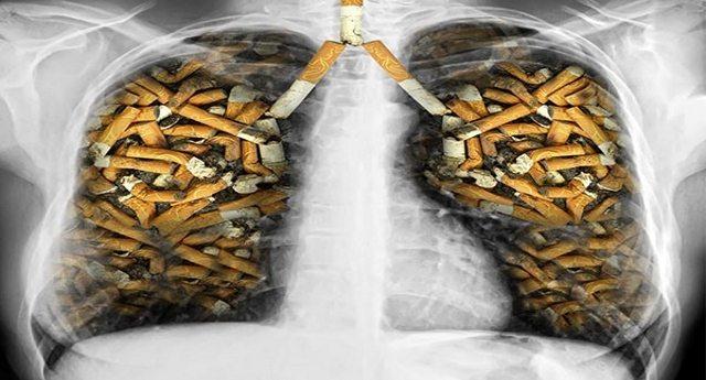 Ecco come si riducono i tuoi polmoni dopo solo 30 pacchetti di sigarette!