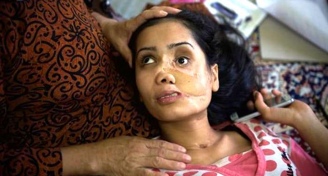 Costretta al matrimonio, sfigurata dal marito: il volto di Shakila è la tragedia di milioni di donne