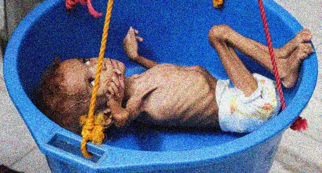 La strage degli innocenti a cui partecipiamo con le nostre bombe - Yemen dall'inizio del conflitto 84.701 bambini sotto i 5 anni sono morti per fame o malattie... E sulla coscienza ce li abbiamo pure NOI...!