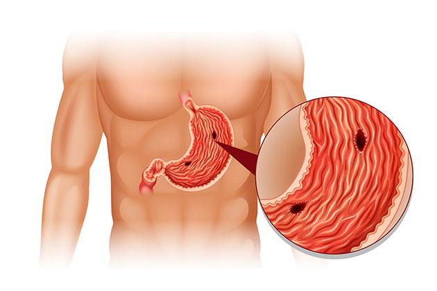 Il batterio dell'ulcera può scatenare il tumore allo stomaco.