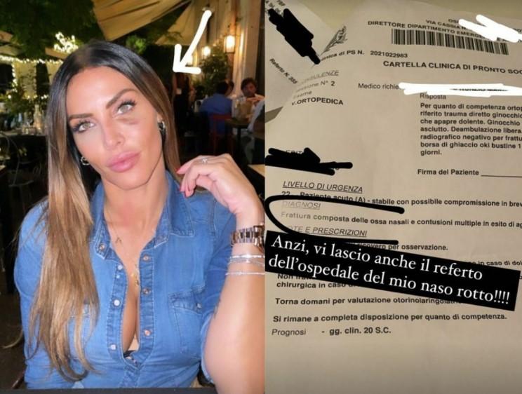 Guendalina Tavassi contro gli hater che non credono all'aggressione: «Ecco il referto, ho il naso fratturato»