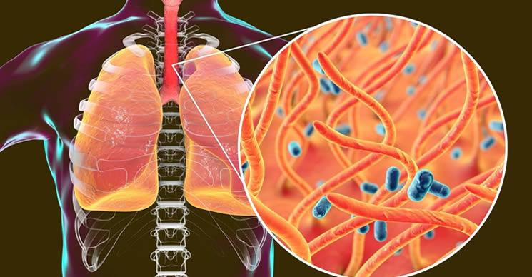 I 5 alimenti che indeboliscono il sistema immunitario più velocemente