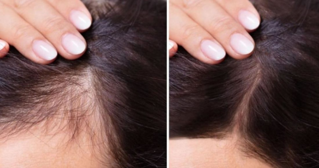 Siero notturno fai da te per accelerare la crescita dei capelli in 2 settimane