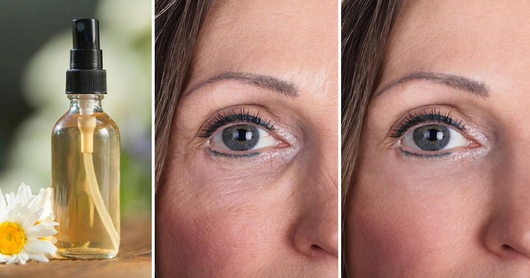 Pelle liscia e morbidissima con un tonico fai da te contro acne e rughe