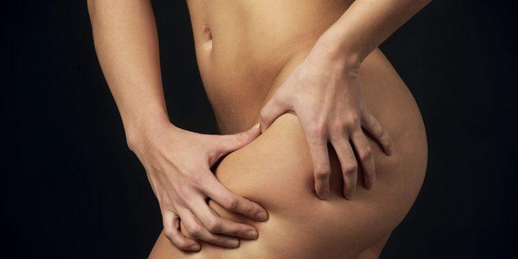 Come combattere la cellulite: dieta, sport, rimedi naturali e trattamenti