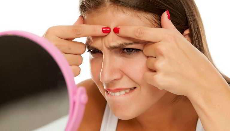 Brufoli, come combattere l'acne a tutte le età