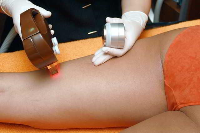 La depilazione ed epilazione