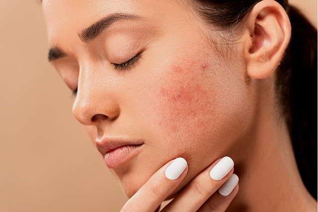 Maskne: come curare l'acne da mascherina