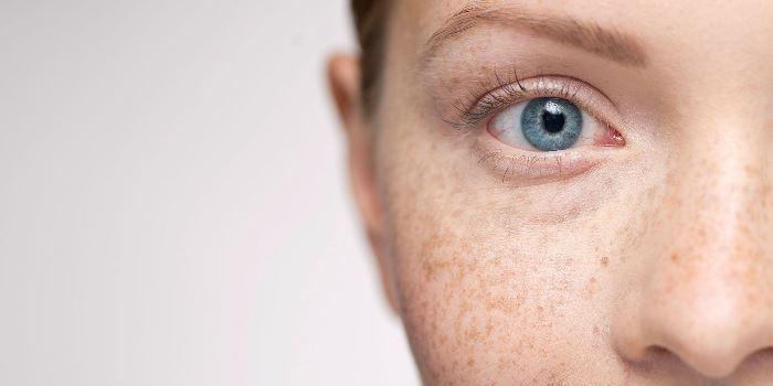 Quali sono le cause delle macchie solari sul viso