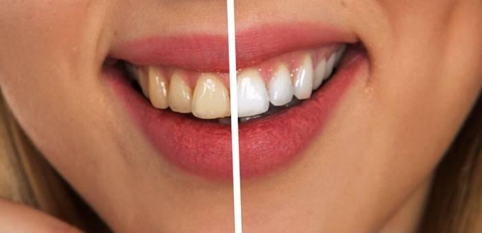 Esistono prodotti validi per lo sbiancamento dei denti?