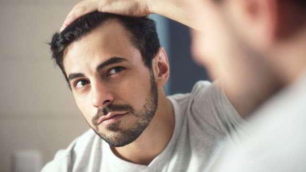 In cosa consiste il trapianto di capelli