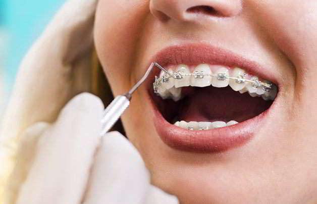 Apparecchio per i denti: a ciascuno il suo