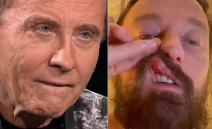 Roby Facchinetti contro Conor McGregor: